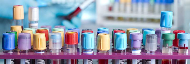 Folyamatosak a vérvételek és laboratóriumi vérvizsgálatok az Endomedixnél